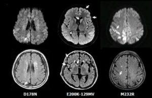 EEG brain